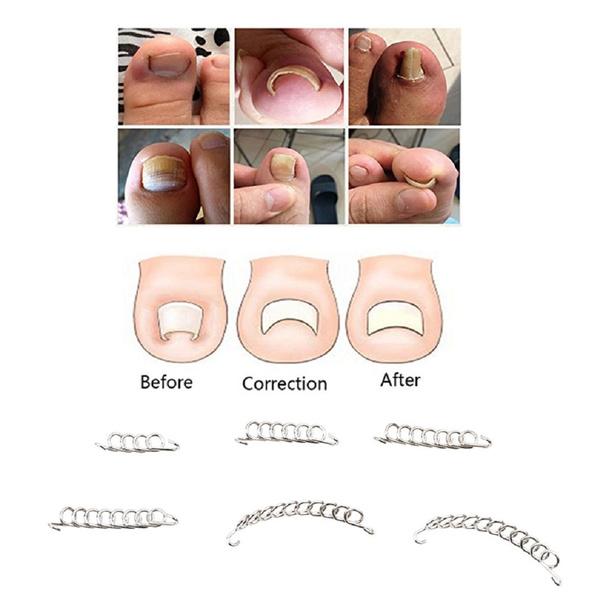 toenailcorrector, toenailfixer, Beauty, Pedicure Tools