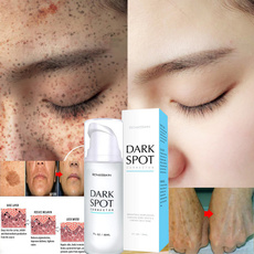 fadedarkspot, whiteningcream, faceandbodywhiteningcream, frecklefacecream