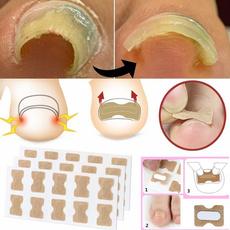 toenailcorrector, ingrown toenail, ingrowntoenailtool, Elastic