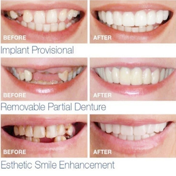 smilingteeth, Beauty tools, dentalcare, Beauty