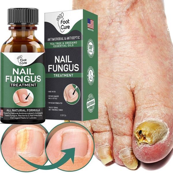 onychomycosisrepair, Beauty, toenail, fungalnail