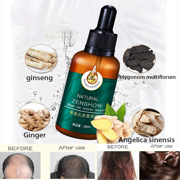 fasthairgrowth, Beauty, bald, germinal