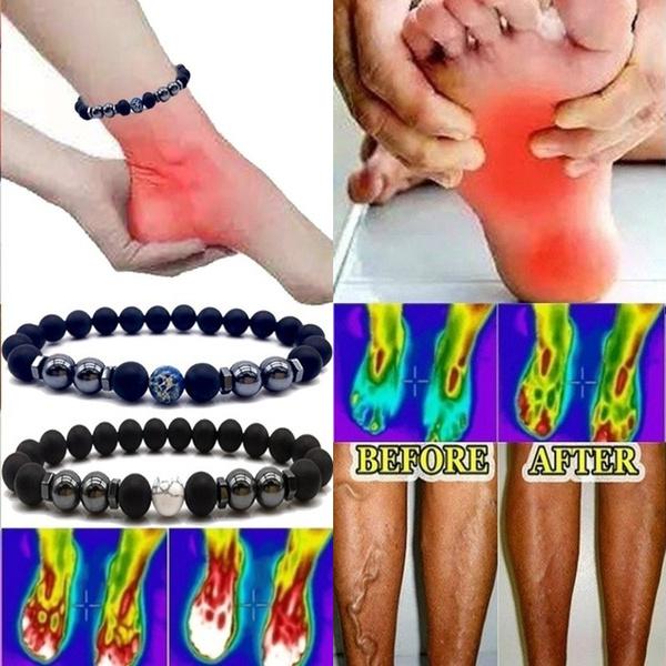 vasculitisvein, Jewelry, Healthy, magneticbracelet