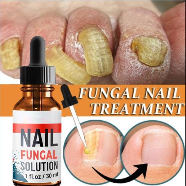 fungusremoval, Manicure & Pedicure, Beauty, nailtreatment