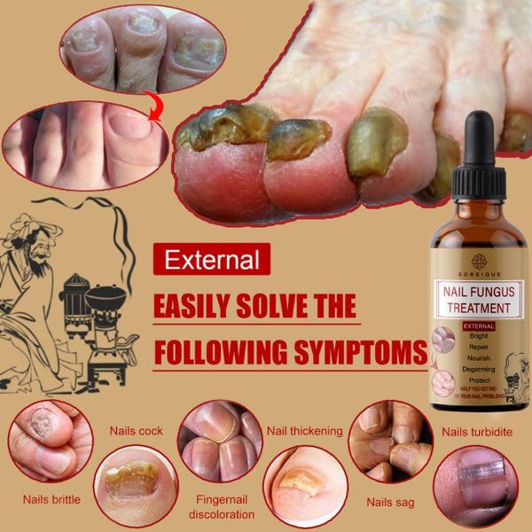 Nails, Beauty, Chinese, onychomycosiscare