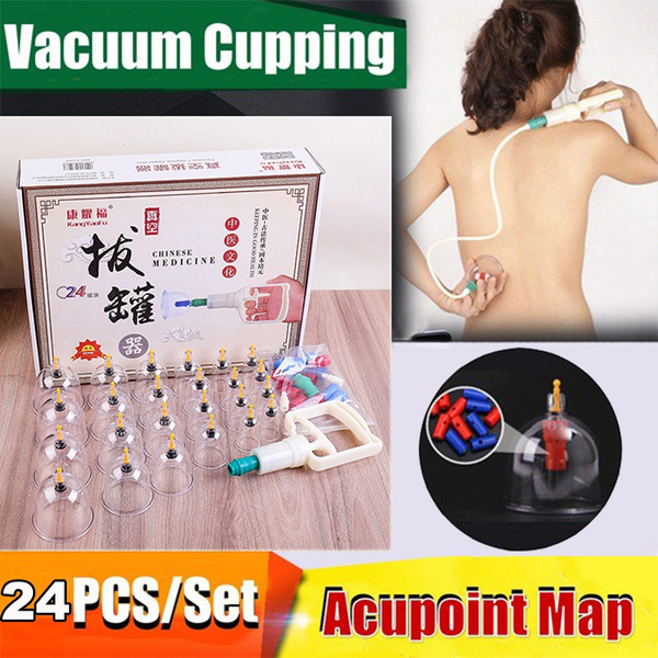cuppingtherapyset, cuppingtherapycup, Chinese, vacuumcupping