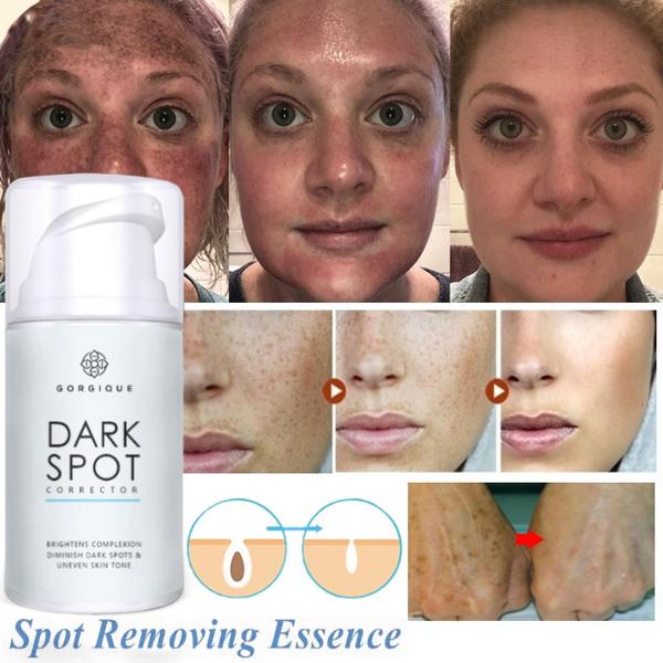 Skincare, fadedarkspot, Acne, creammelasma