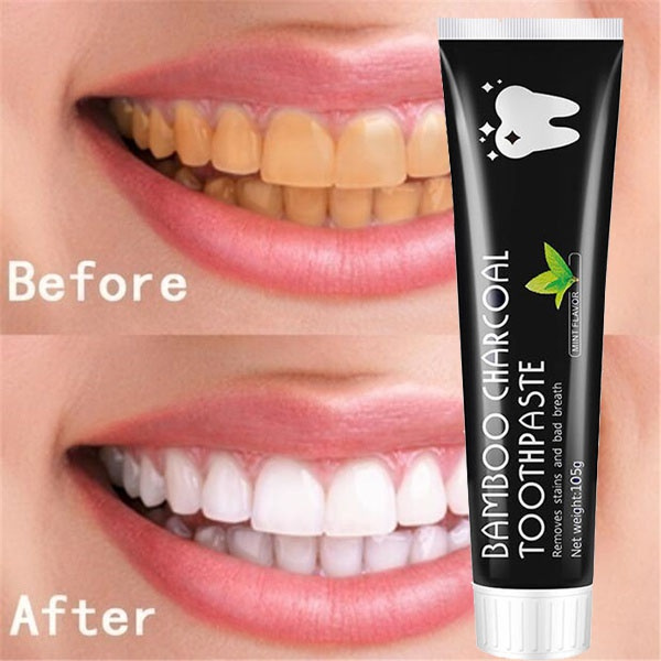 teethwhitening, Toothpaste, teethwhite, healthyteeth