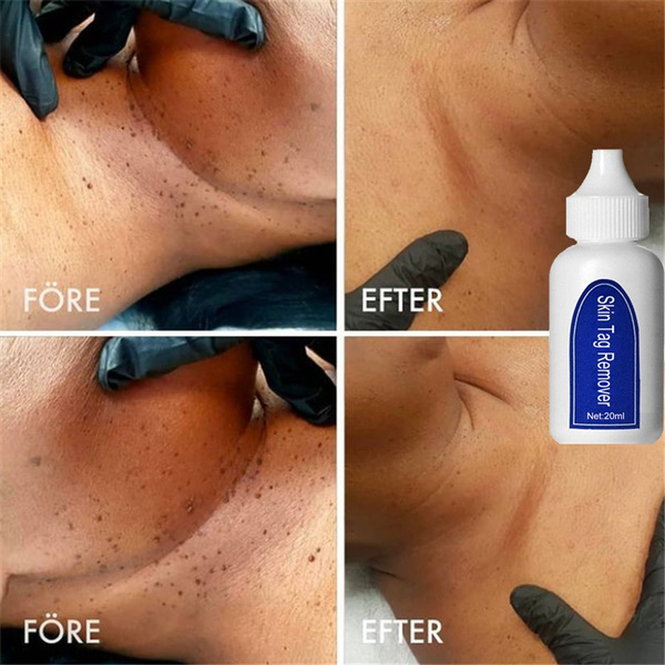 Skincare, wartstreatment, wart, cornremoval
