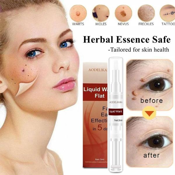freckle removal, footwart, skintagmoleremover, healthampwellne