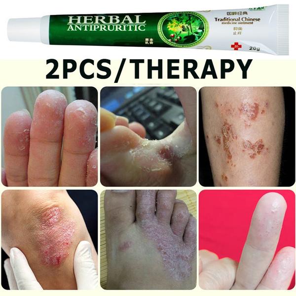antifungaltreatment, psoriasiscream, microskintagremover, dermatiti