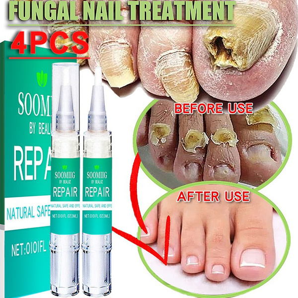 nailsartamptool, Beauty, onychomycosi, Bright
