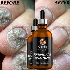 finger, Manicure & Pedicure, Beleza, toenail
