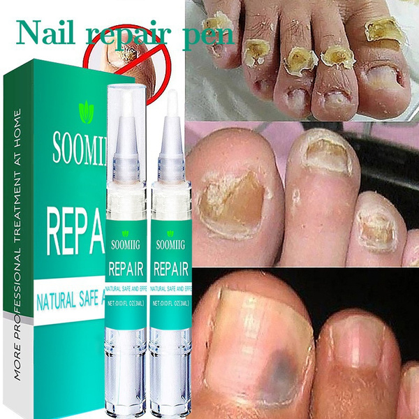fungusremoval, nailsartamptool, Beauty, onychomycosi