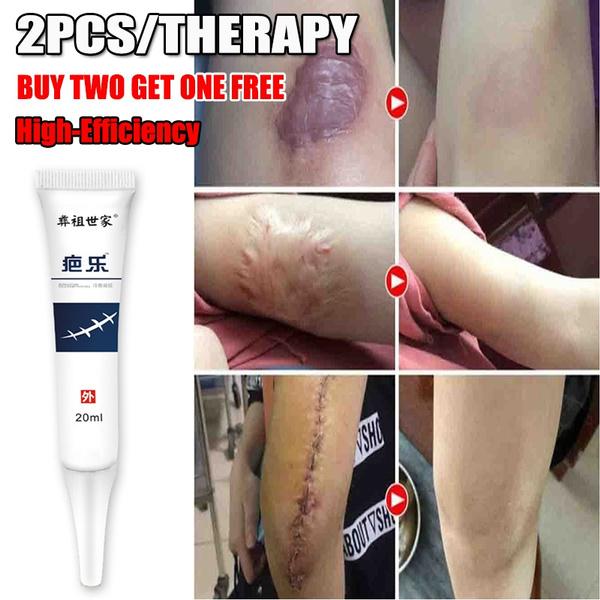 stretchmarksremoval, removalscarscream, scarcream, acnespottreatment