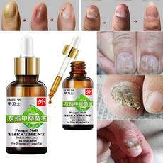 Chinese, toenail, fungalnail, Nails