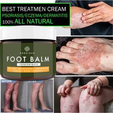 chappedcream, herbalcream, dermatiti, Foot Care