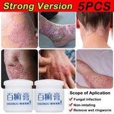 psoriasiscream, Chinese, antibacteria, ointment