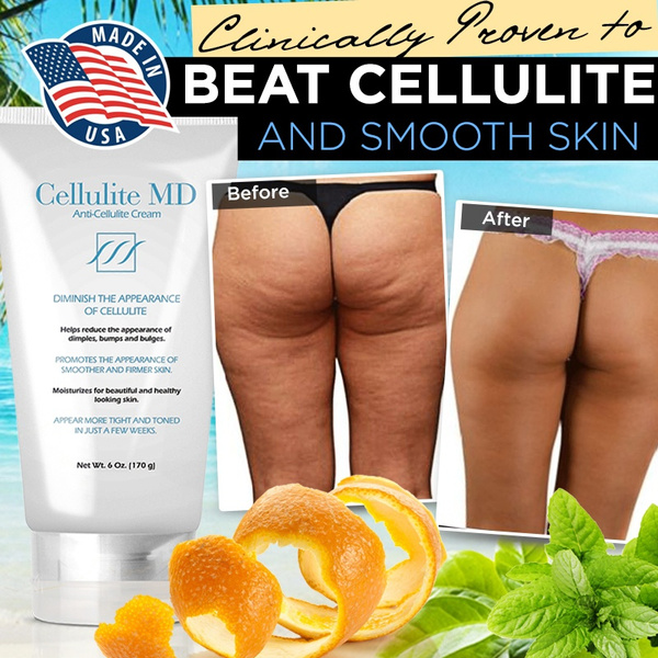 Beauty, anticellulite, Health & Beauty, fat