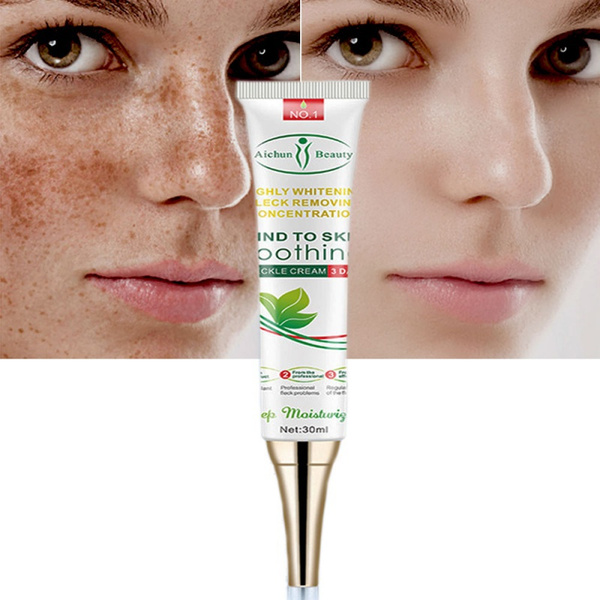 Women, fadedarkspot, Beauty, creammelasma