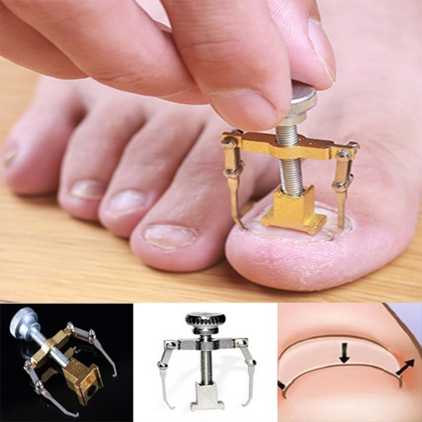 correctiontool, fixedtoe, Beauty, Nail Art Accessories