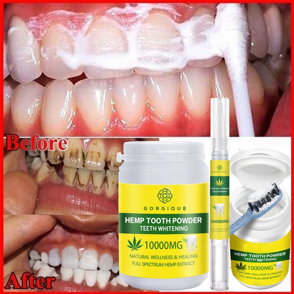 teethwhitening, Toothpaste, stainsremoval, smoker