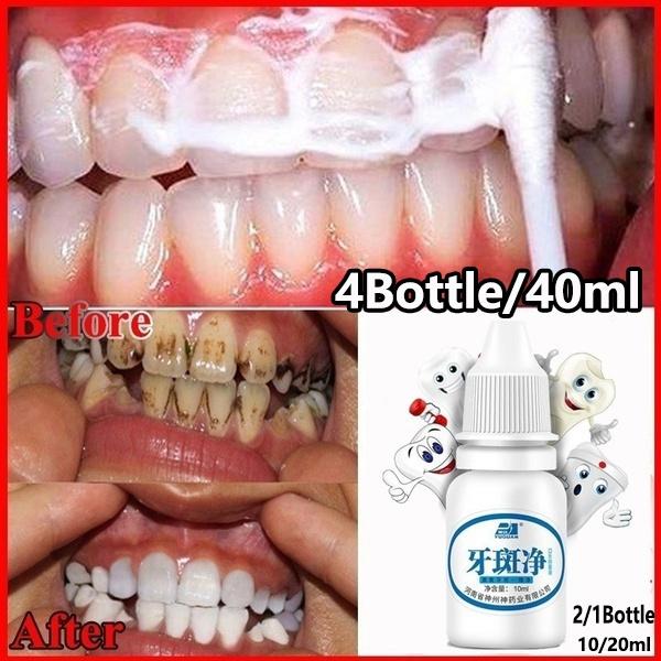 teethwhitening, Beauty, Healthy, teeth