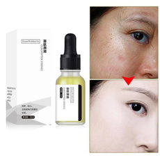 $15, Acne, Remover, hyaluronic