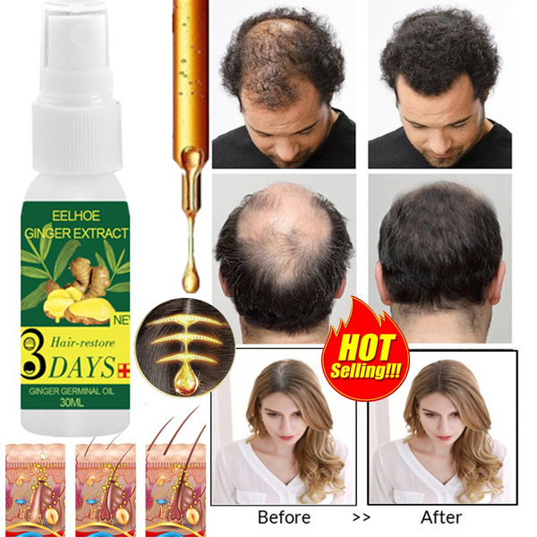 haircaretool, professionalhairdressing, Shampoo, fastgrowth