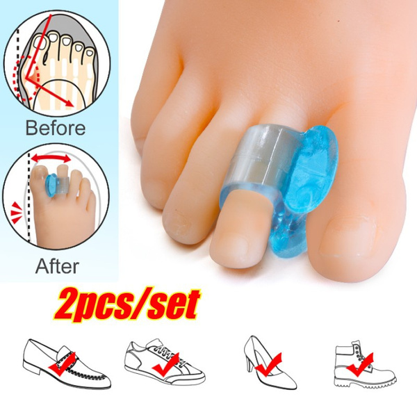 toeseparator, siliconethumbcorrector, Silicone, straightenersspacer