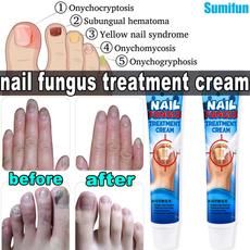 antifungusnailtreatment, toenailfungu, nailinfectiontreatment, Beauty