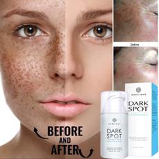 Dark, freckles, melasma, Whitening