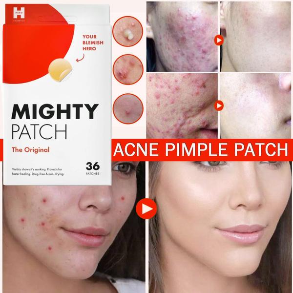 Skincare, acnepatch, blemish, acneremover