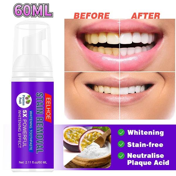 whiteningteeth, teethwhitening, Toothpaste, toothwhitening
