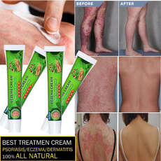 chronicdermatiti, ringworm treatment, tineamanu, herbalcream