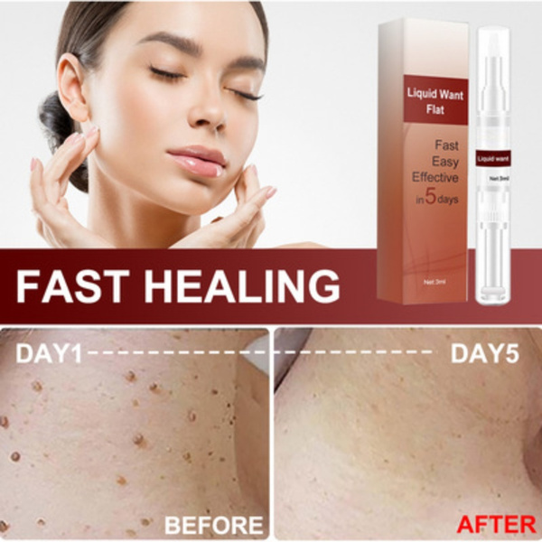 blemishremoval, Fashion, Beauty, wartremoval