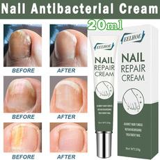 Beauty, toenail, onychomycosi, nailtreatment