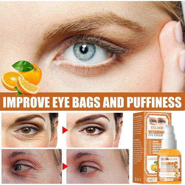 eyecreamdarkcircle, eye, dark circles treatment, Dark Circles